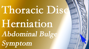 Cross Chiropractic Center treats thoracic disc herniation that for some patients prompts abdominal pain.