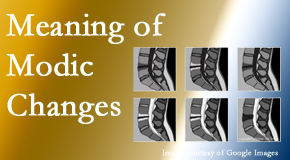 Cross Chiropractic Center sees many back pain and neck pain patients who bring their MRIs with them to the office. Modic changes are often seen.