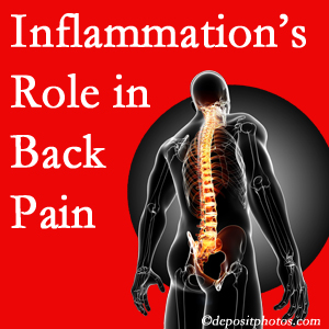The role of inflammation in Sandy Springs back pain is real. Chiropractic care can manage it.