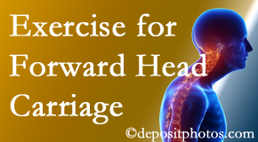 Sandy Springs chiropractic treatment of forward head carriage is two-fold: manipulation and exercise.