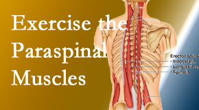 Cross Chiropractic Center explains the importance of paraspinal muscles and their strength for Sandy Springs back pain relief.