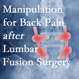 Sandy Springs chiropractic spinal manipulation helps post-surgical continued back pain patients discover relief of their pain despite fusion.