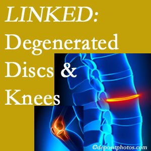 Degenerated discs and degenerated knees are not such strange bedfellows. They are seen to be related. Sandy Springs patients with a loss of disc height due to disc degeneration often also have knee pain related to degeneration.