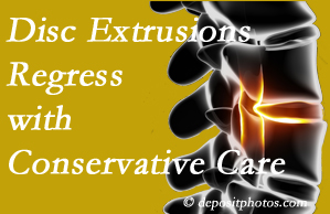 Sandy Springs chiropractic care of extruded discs may benefit regression of them and improve your quality of life.
