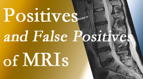 Cross Chiropractic Center carefully chooses when and if MRI images are needed to guide the Sandy Springs chiropractic treatment plan.